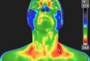 Upper Body Thermo Image